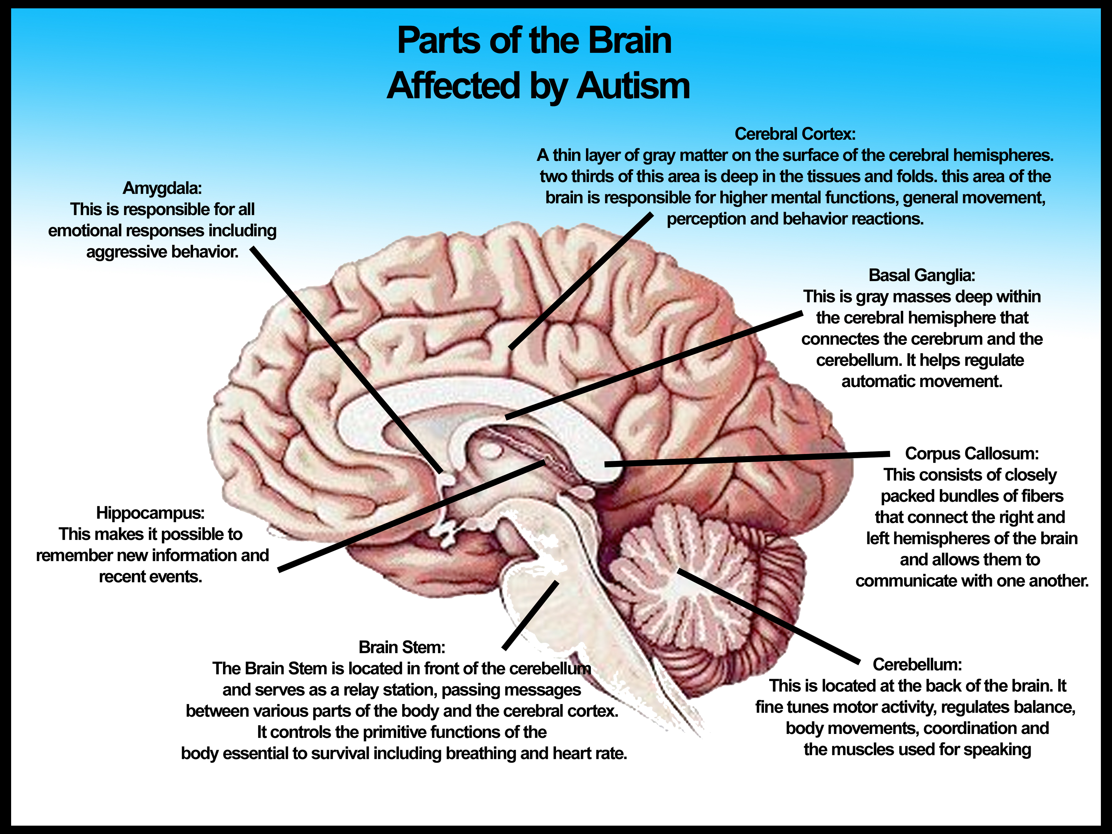 Parts of the brain affected by autism no logo3